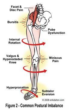descompensacion postural